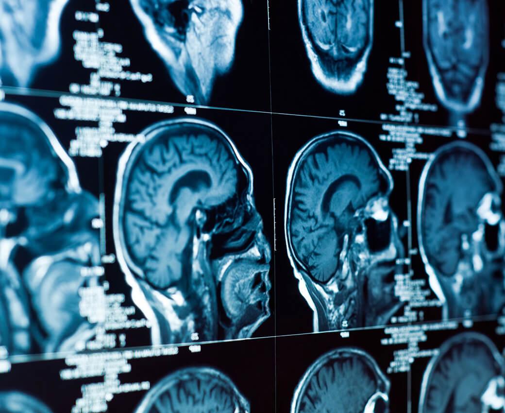 proimages/smart/14564048-medical_image-1.jpg