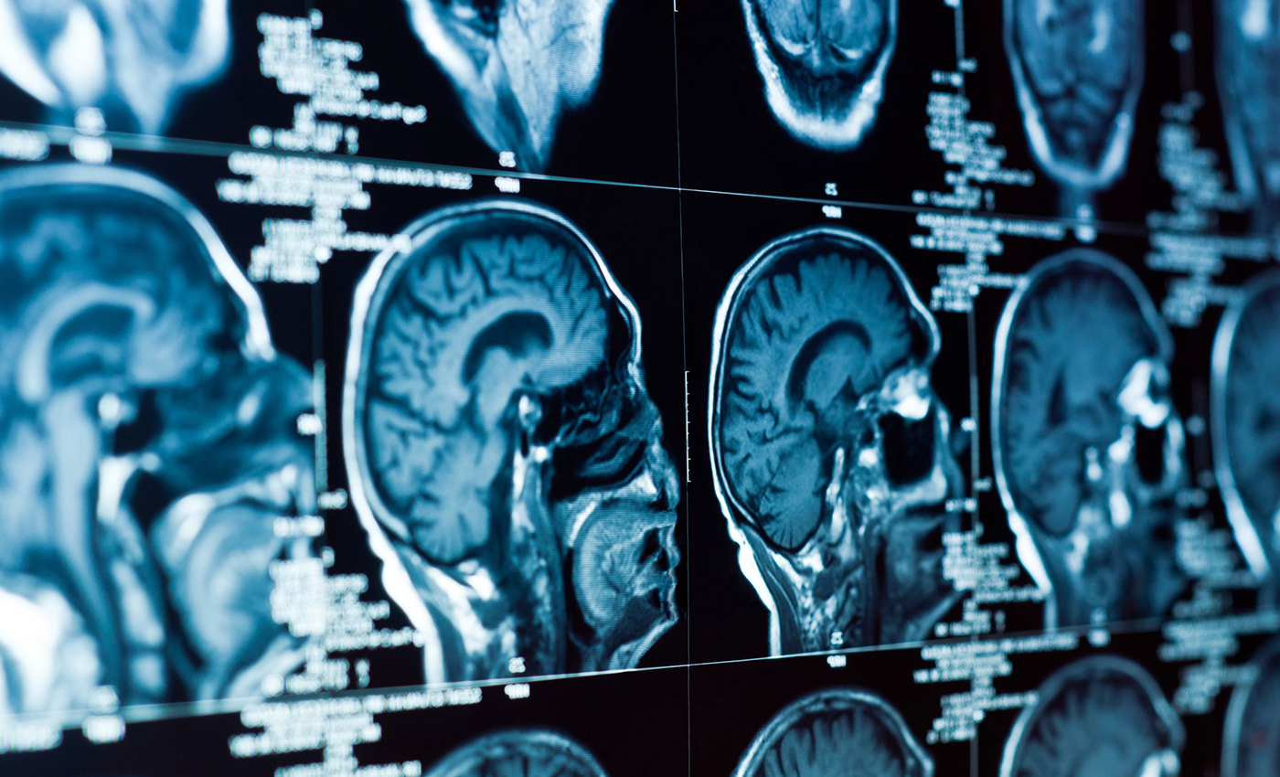 proimages/solution/14564048-closeup-of-a-ct-scan-with-brain-and-skull-on-it.jpg